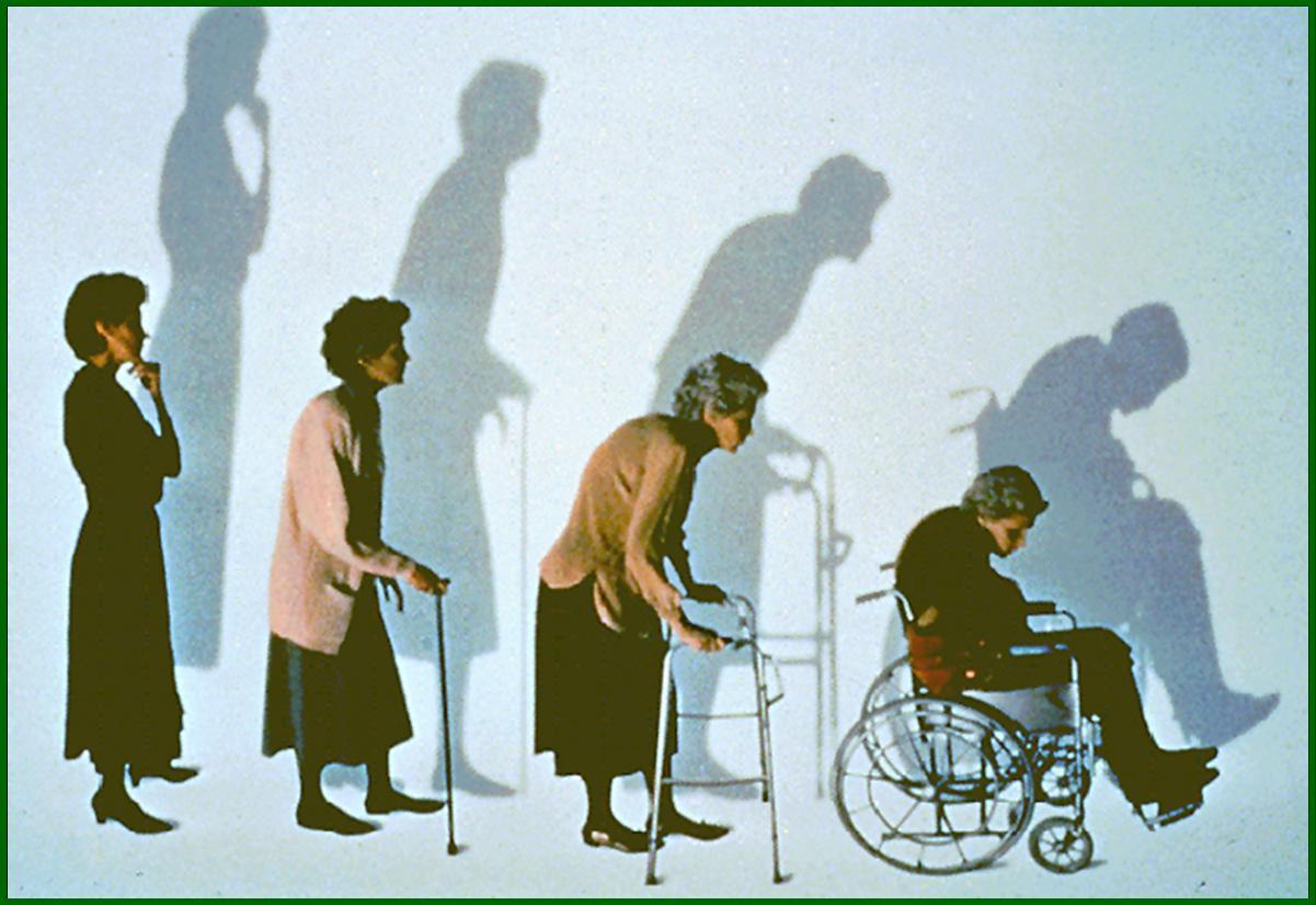 Imagen de la evolución de una mujer con osteoporosis (Foto cedida por