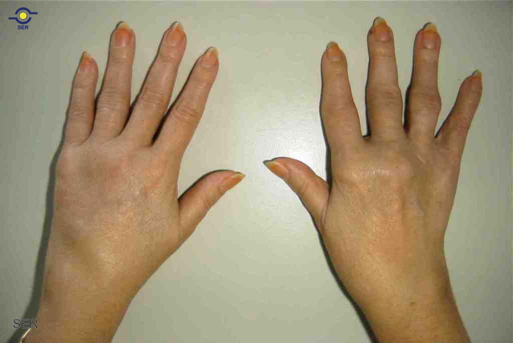 La psoriasis de la vejiga