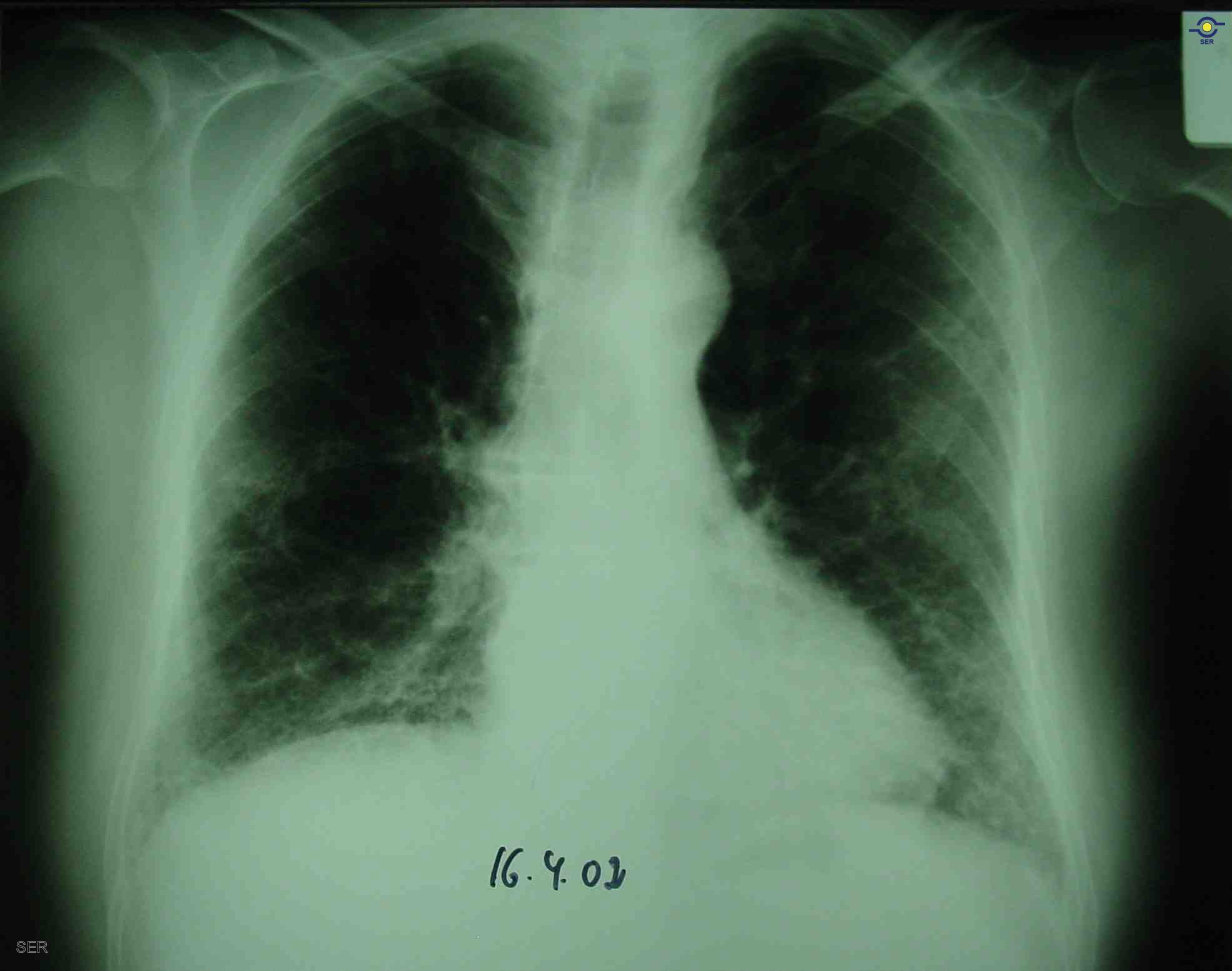 Una radiografía muestra fibrosis pulmonar bibasal