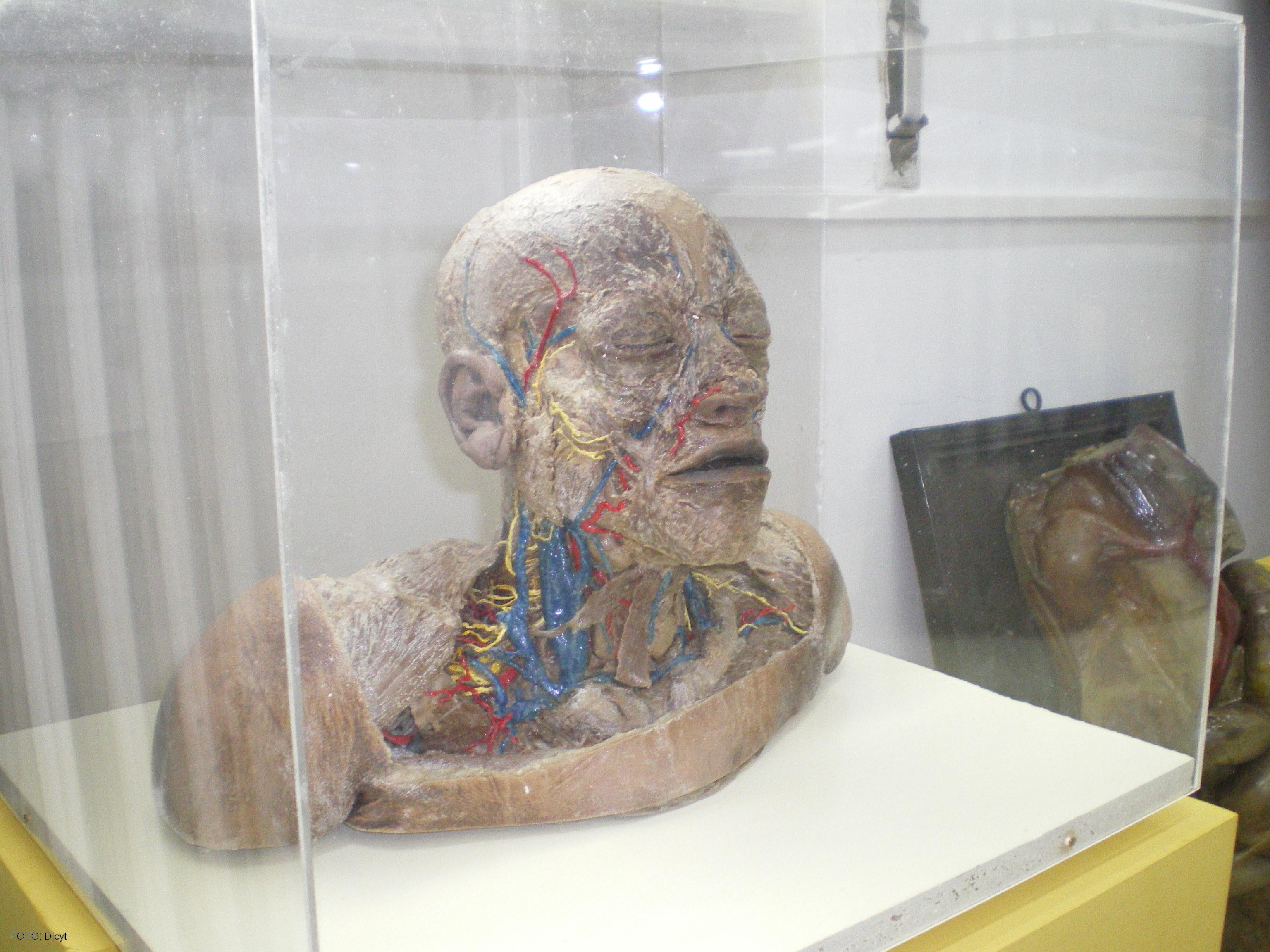 Imagen de una de las piezas sometidas a la técnica de plastinación ...